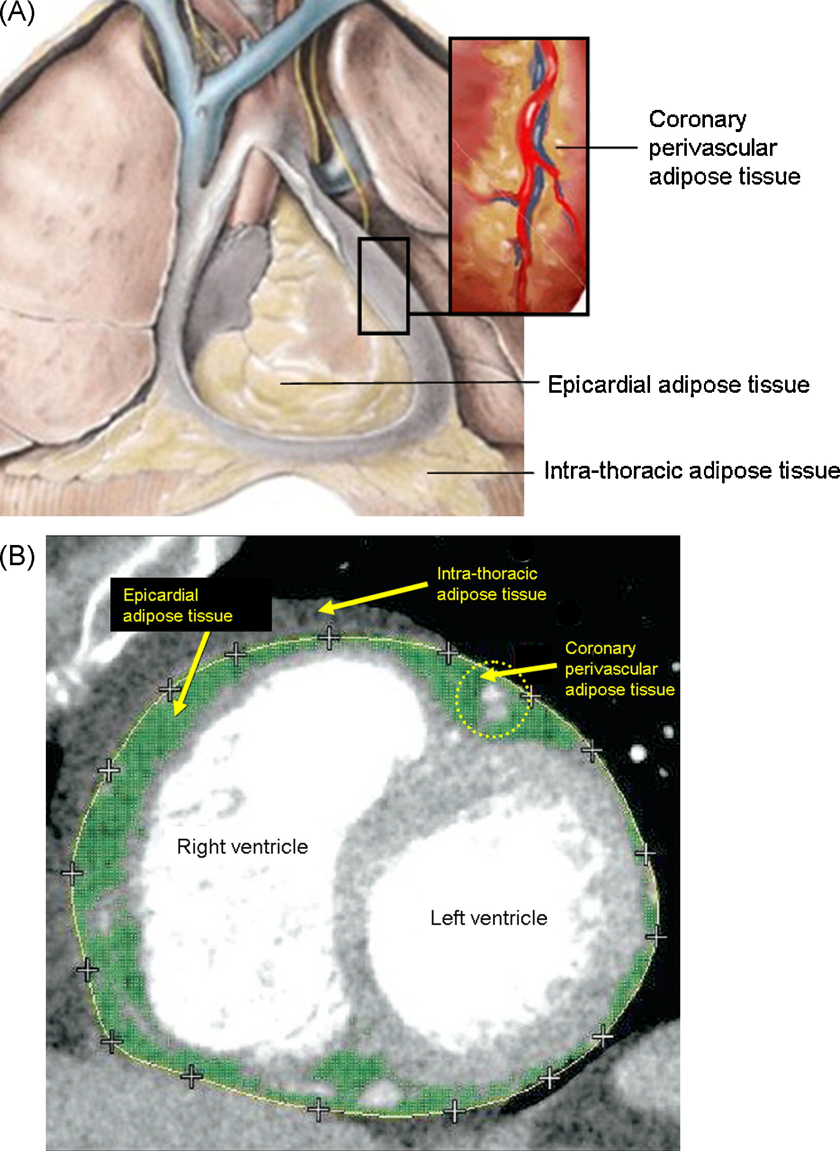 Perivascular Adipose Tissue As A Cause Of Atherosclerosis