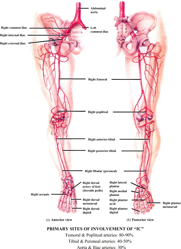 intermittent claudication  an overview